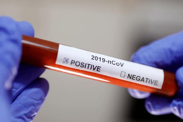 Ao Vivo: Secretário Beto Preto fala sobre o Coronavírus e ações do Estado